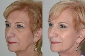 عکس لیفت پوست صورت قبل و بعد عمل