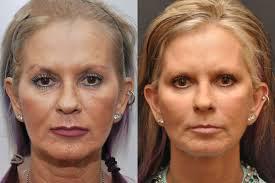 عکس قبل و بعد لیفتینگ