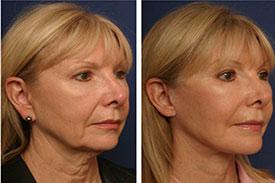 عکس قبل و بعد کشیدن پوست